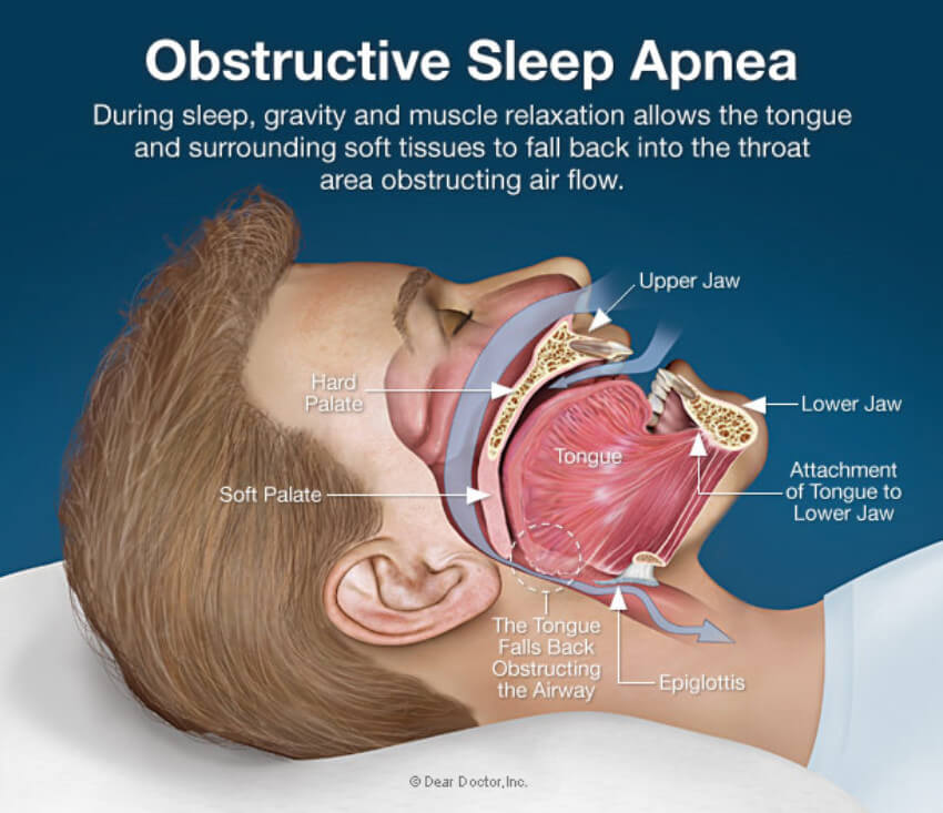 Make sure to go to a doctor if you suspect you have sleep apnea!